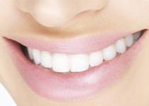 esthétique dentaire